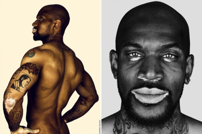 cliomakeup-foto-vitiligine-5-uomo-corpo