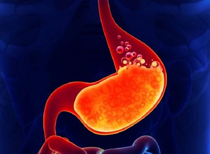 cliomakeup-bruciore-stomaco-stomaco-2