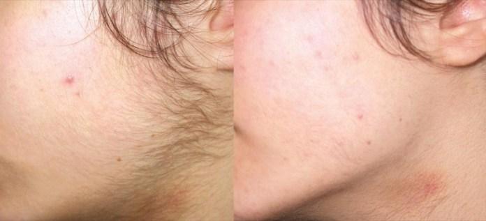 ClioMakeUp-peluria-viso-donne-7-prima-dopo.jpg