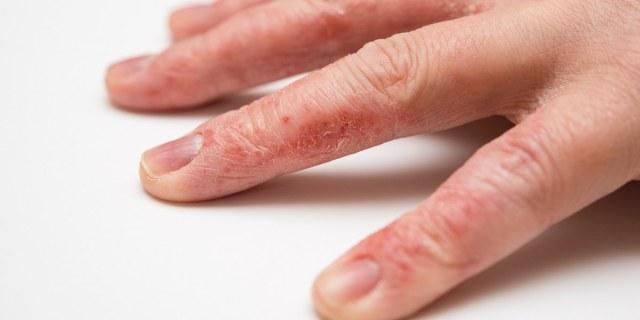 cliomakepp-cura-mani-freddo-6-pelle-secca