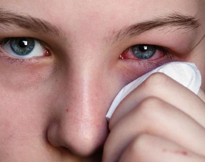 cliomakeip-trucco-anti-raffreddore-8-occhi-rossi-raffreddore