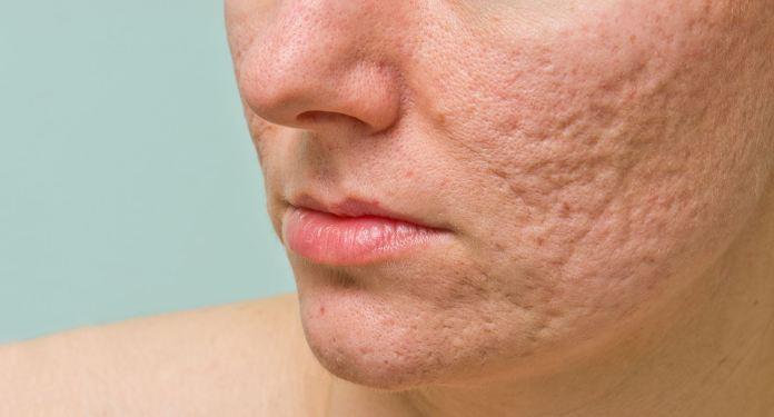 cliomakeup-post-popolari-cmu-14-cicatrici-acne
