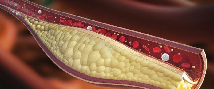 cliomakeup-colesterolo-alto-3-placca-ateromasica