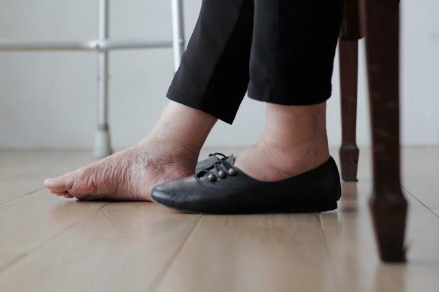 cliomakeup-giornata-mondiale-linfedema-4-linfedema-gonfiore-scarpe
