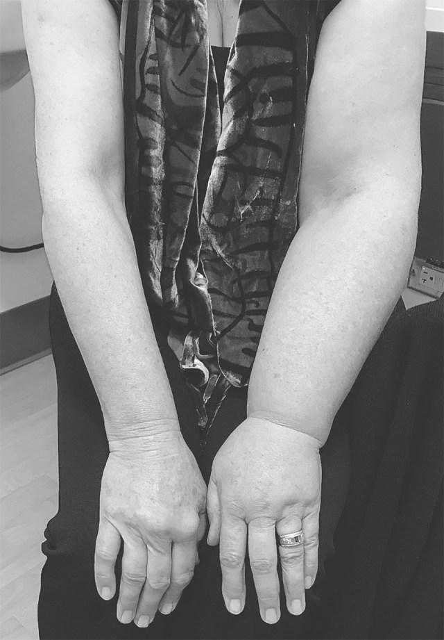 cliomakeup-giornata-mondiale-linfedema-10-linfedema-dopo.tumore-seno
