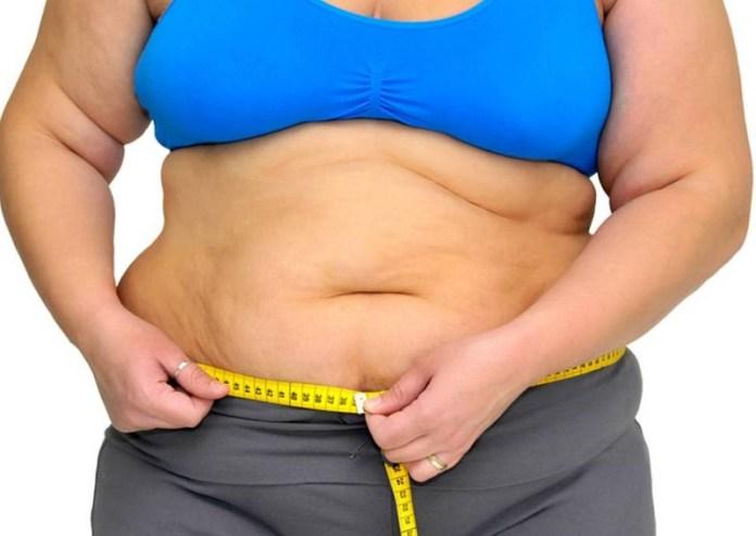 cliomakeup-esercizi-mal-di-schiena-5-obesità-androide.jpg