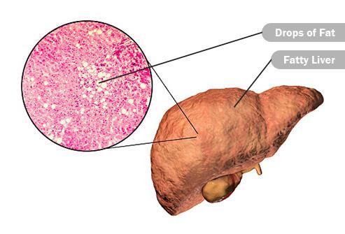 مرض الكبد
