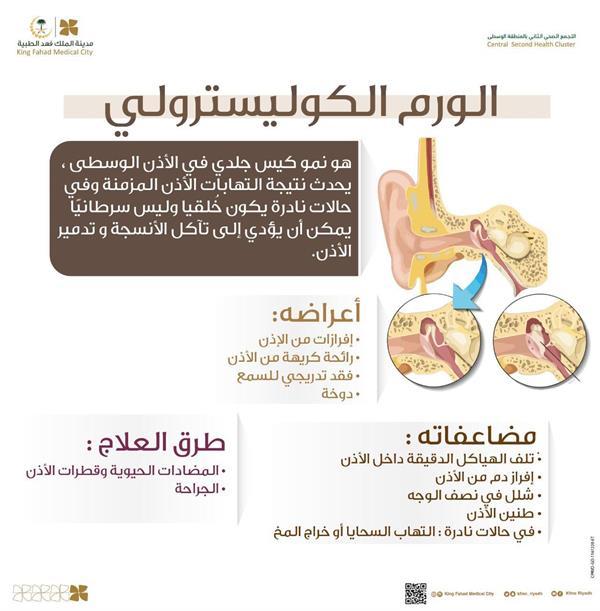 "Including hearing loss .. ""Fahd Medical"" Dangers Warning ""Cholesteatoma"" And explain its symptoms and complications"