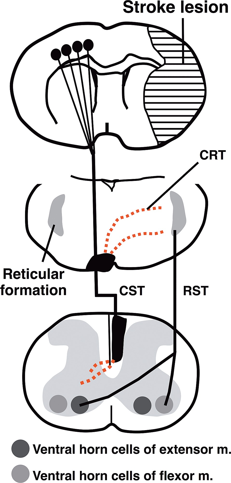hight resolution of schematic diagram showing enhancement of the midline crossing fibers by lotus overexpression after mcao