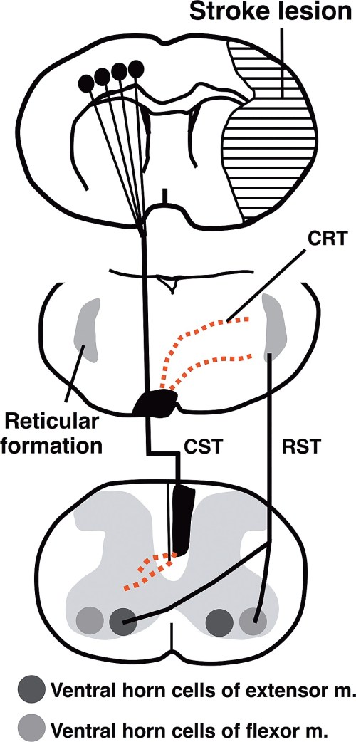 small resolution of schematic diagram showing enhancement of the midline crossing fibers by lotus overexpression after mcao