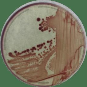 coliform bacteria