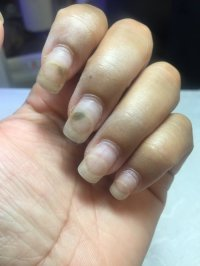 Acrylic Nails Over Fungus - Nail Ftempo