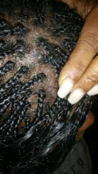 3 weeks braids a hot mess.. Scalp have appears fungus. I ...