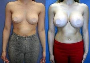 a cup breasts natural