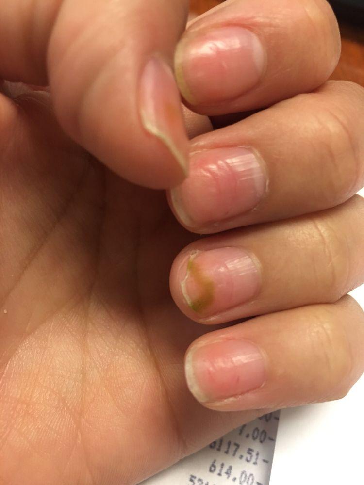Mma Nail Damage : damage, Water, Damage, Nails
