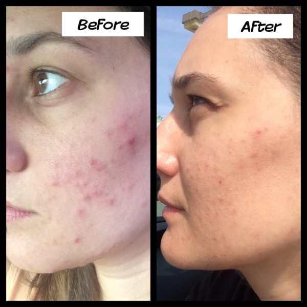 Makeup Filler For Acne Scars Saubhaya Makeup Mvlc