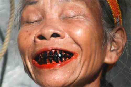 betel-nut-black-teeth