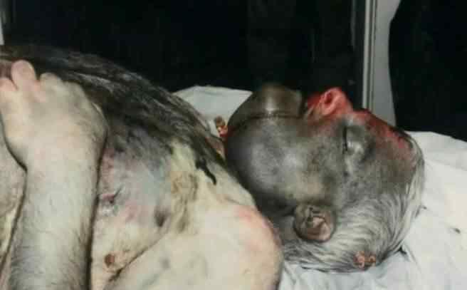 Foto do corpo de Phil torturado