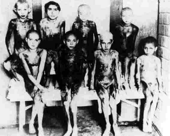 Essas crianças eram submetidas a frio mortal. Essas partes escuras são carne necrosada.