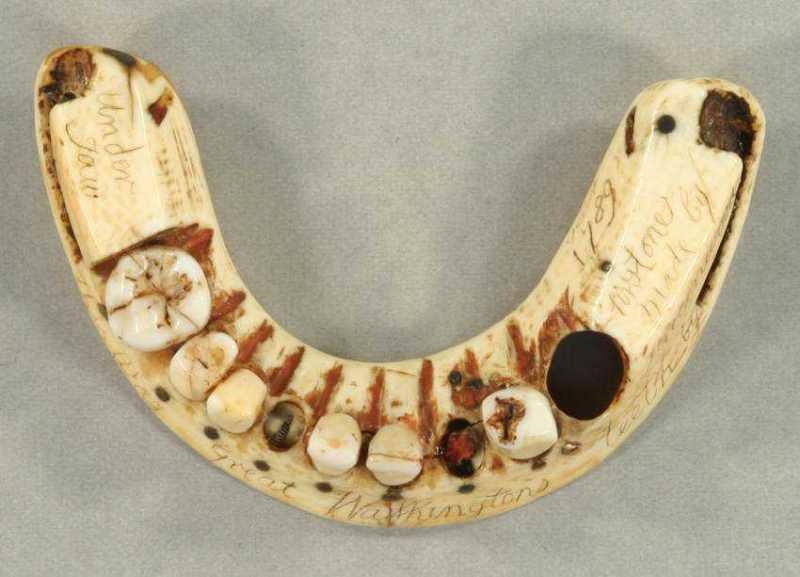DentureTop