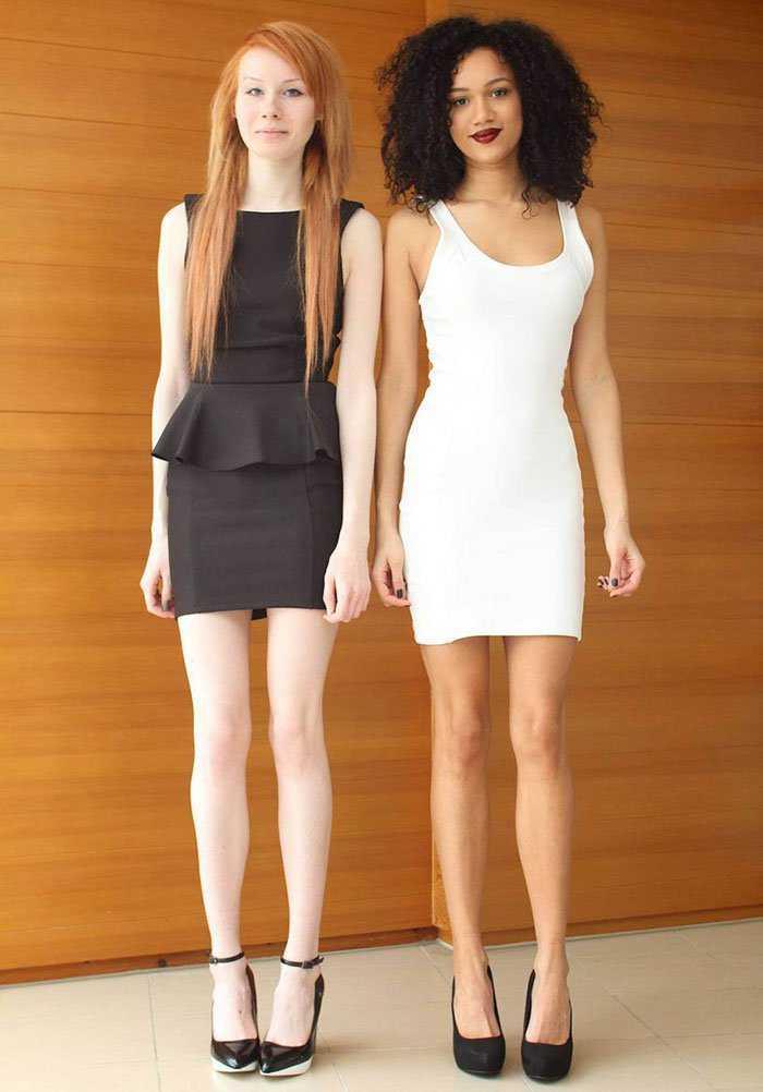 black-white-skin-twin-sisters-lucy-maria-aylmer-22