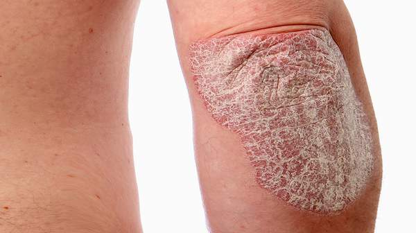 Psoriasis: Learn about Fact, Causes & Symptoms
