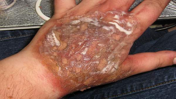 Chemical Burns: Symptoms & First Aid Treatment