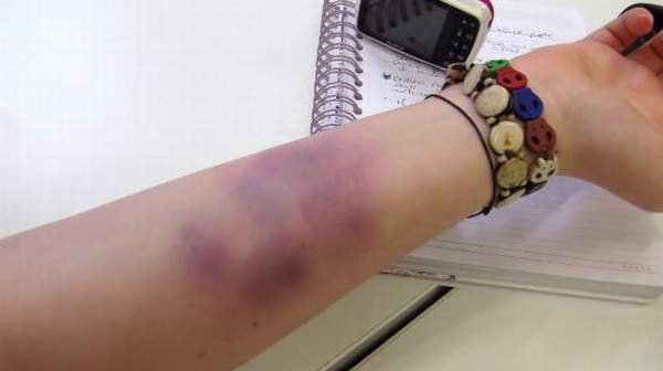 Bruise: Risk Factors, Symptoms & Home Treatment