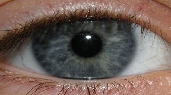 HIV Affecting Eyes?