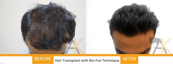 bio fue hair transplant india