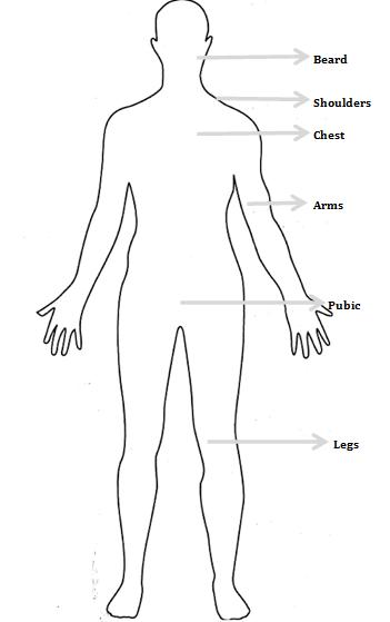 body hair transplant india