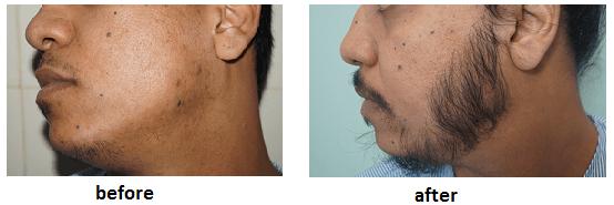 ak clinics facial hair transplant india