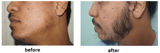 ak clinics facial hair transplant india