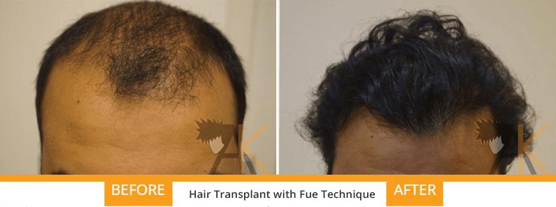 FUE hair transplant india