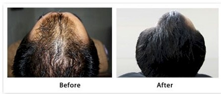 Mesotherapy Hair Loss Treatment India Hairsite Com