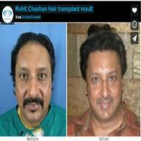 rohit chauhan hair transplant india