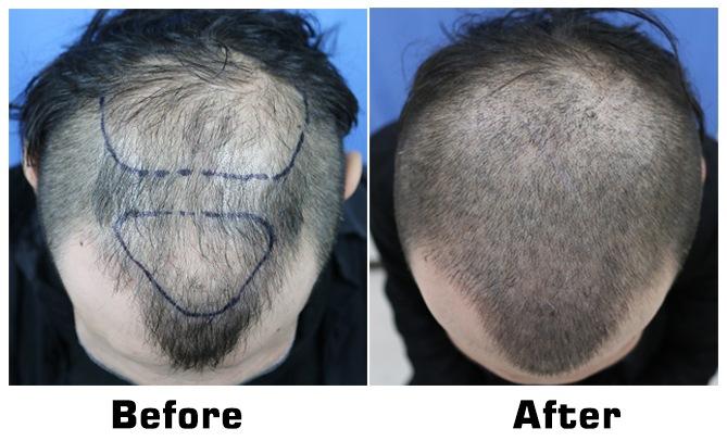 Scalp Micropigmentation to create Buzz Cut look