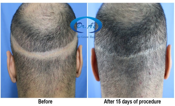 Scalp micropigmentation strip scar repair