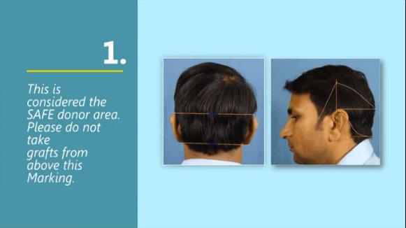 hair transplant training