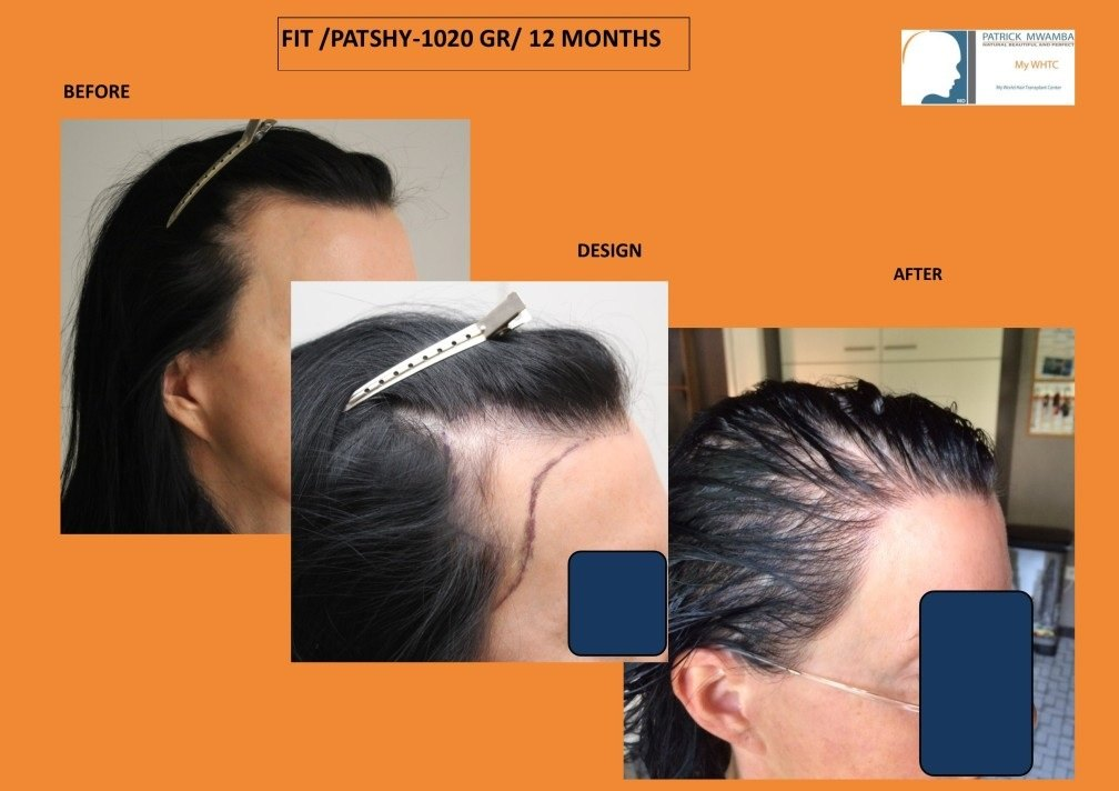 progesterone hair treatment vs hair transplant