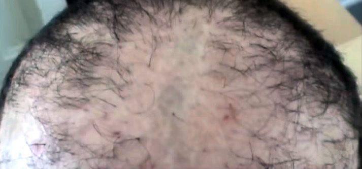 Hair Transplant Horror Stories US