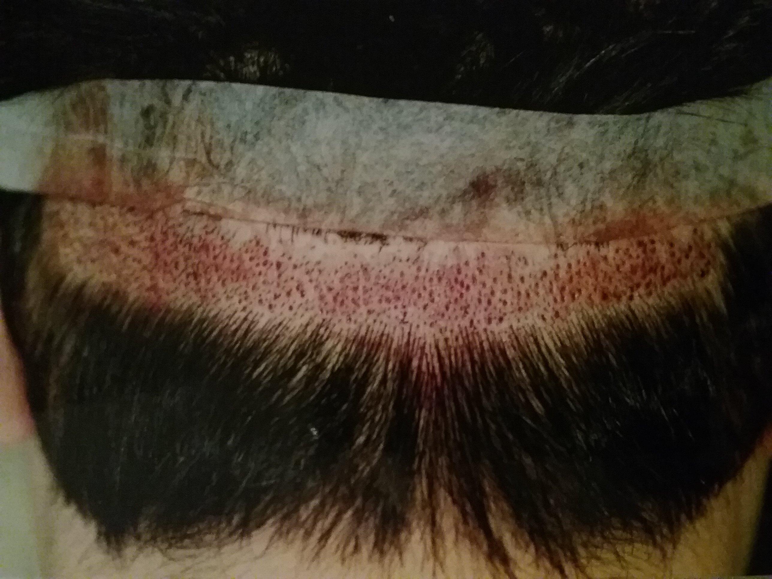 haircut before hair transplant