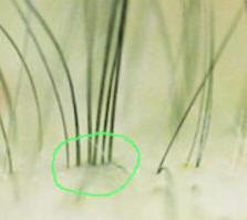 PTD-DBM Interferes CXXC5 Promotes Hair Regrowth Regeneration