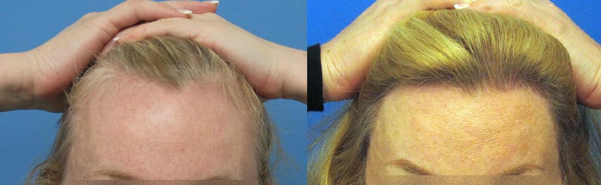 Hasson & Wong Women Hair Transplant