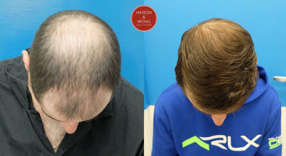 emu oil and hair loss