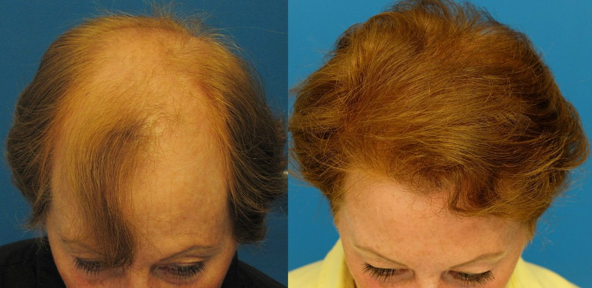 hair color products cause hair loss