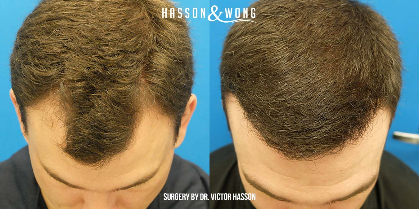 best time for hair transplant surgery