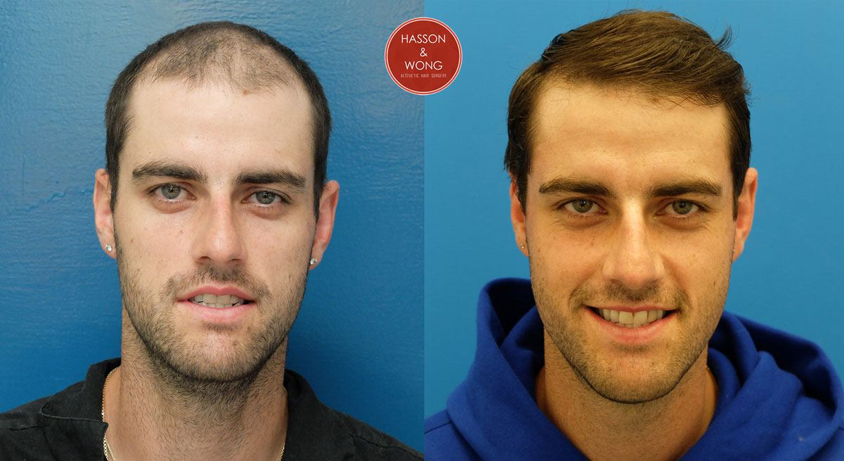 how to fix hair transplant scars