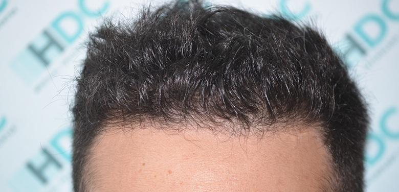 hdc hair transplant