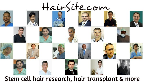 spironolactone hair loss